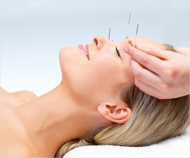 Acupuncture To Prevent Migraine